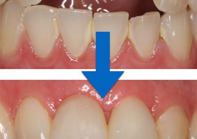 Implants Gallery 1