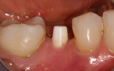 When It Comes to Dental Implants, Metal-Free Is Your Best Bet. Here's Why