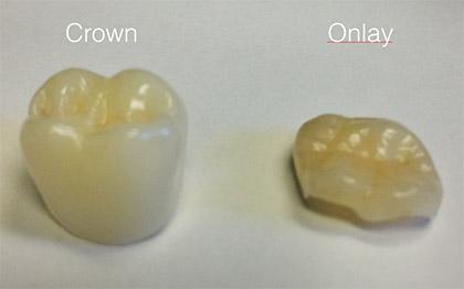 Dental Onlays In Bountiful Ut