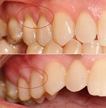 Pinhole Gum Surgery Technique In Bountiful Ut