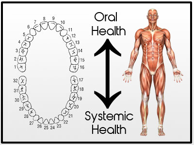 Oral Systemic Health Archives Dr Judson Wall