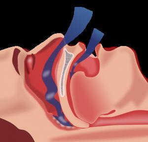 airway diagram - sleep apnea