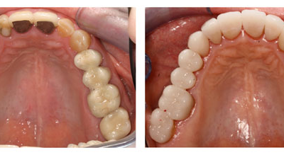 Composite Equal to or Better Than Amalgam, New Study Shows